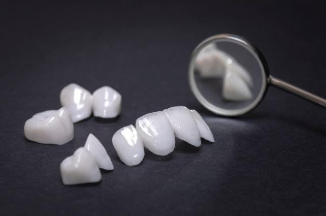 por qué tienes que ponerte carillas dentales
