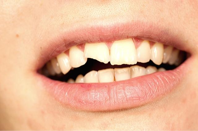 tiene un diente roto