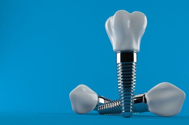 cuanto se tardan en poner los implantes dentales