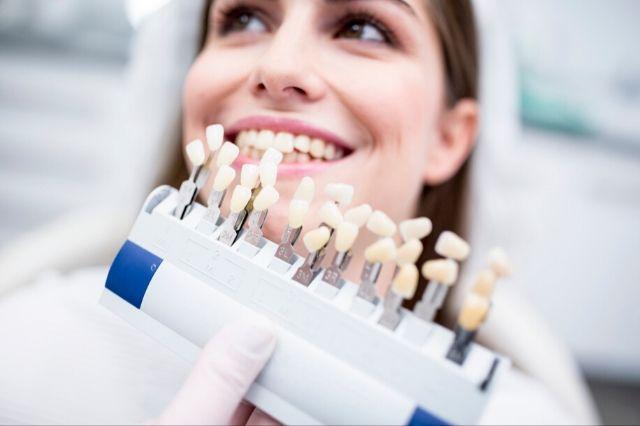 razones por las que ponerte carillas dentales
