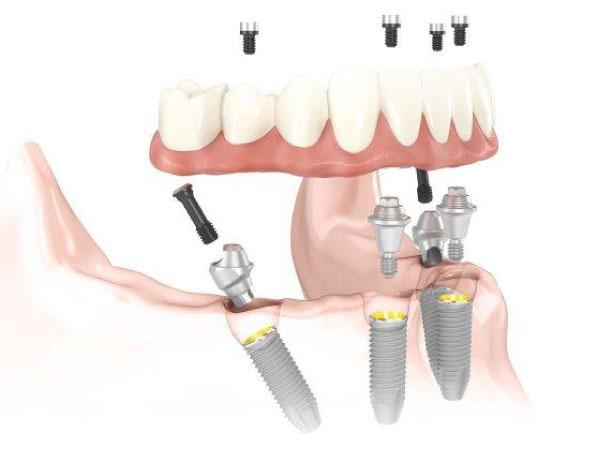 Implante dental boca con poco hueso