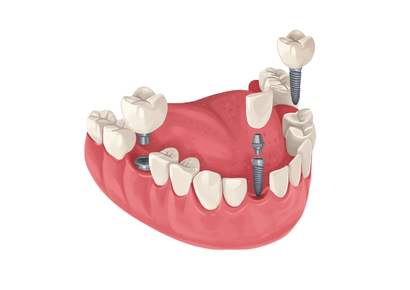 Periodontitis e implantes dentales